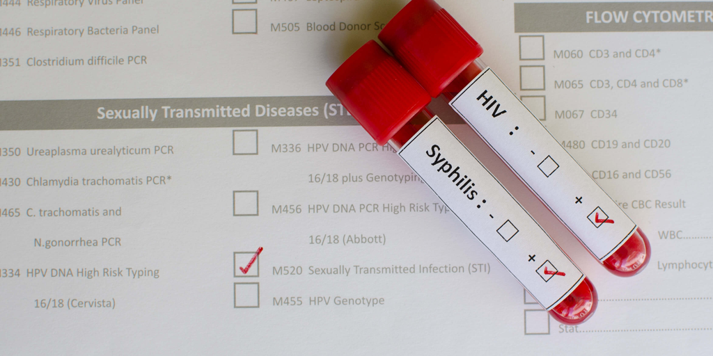 image of STD testing form and tubes